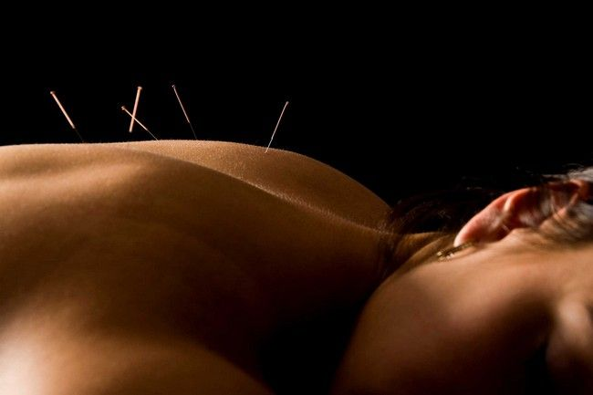 Is an Acupuncturist a Physician