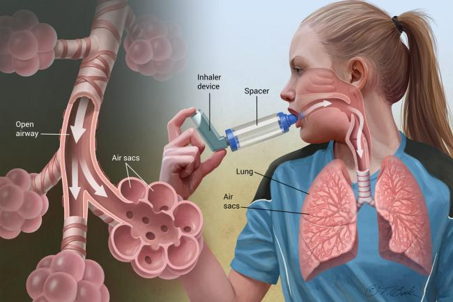 7 Foods and Drinks That May Affect Asthma