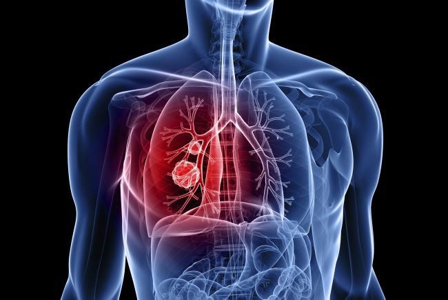 Mesothelioma Lung Cancer