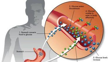 Type 2 Diabetes: Early Diabetes Symptoms