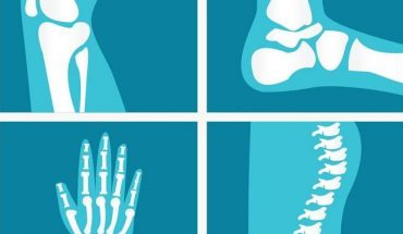 Chronic Joint Pain Treatment